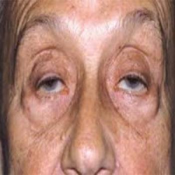 جدیدترین علائم ابتلا به کرونای شدید؛ از فلج شدن صورت تا افتادن پلک