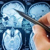 فشار خون بالا و دیابت در میانسالی ساختار مغز را تغییر می دهد