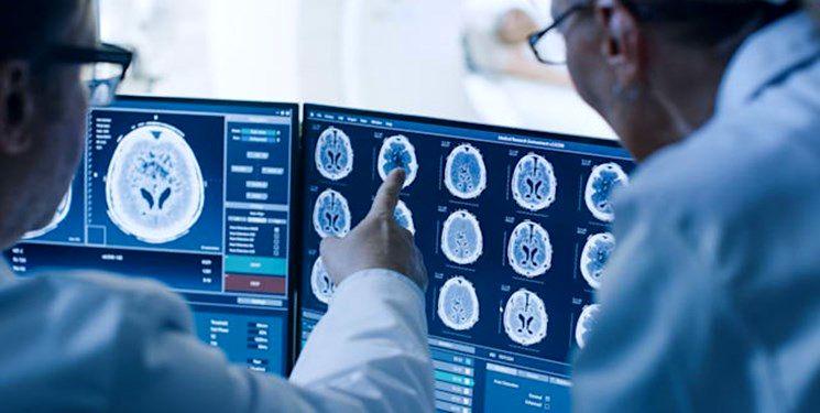 نشانهای از سرطان مغز که فکرش را هم نمیکنید