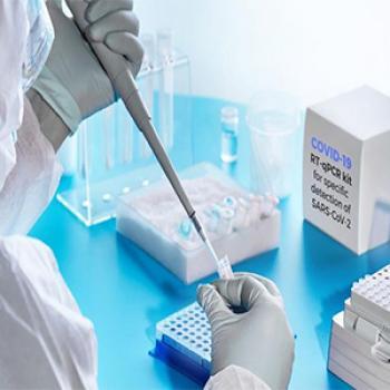 نکاتی که در خصوص تست های آزمایشگاهی کرونا باید بدانید