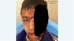 ماجرای سقوط دانش آموز خراسانی از کوه به خاطر شبکه شاد