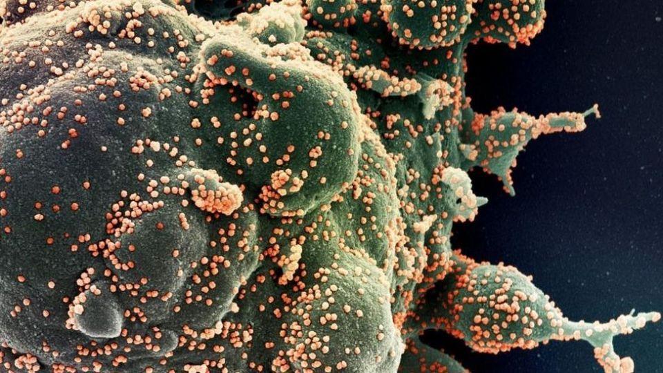 کشف نوع جدیدی از ویروس جهش یافته کرونا در یونان