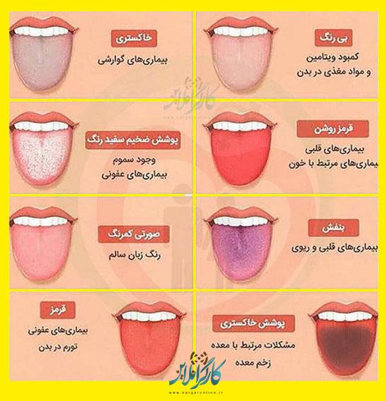 رنگ زبان+دردهای بدن