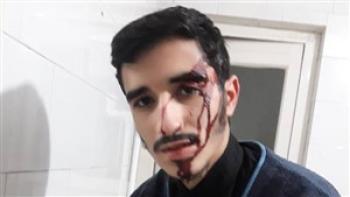 کتک زدن طلبه بسیجی در تهران بدون هیچ دلیلی