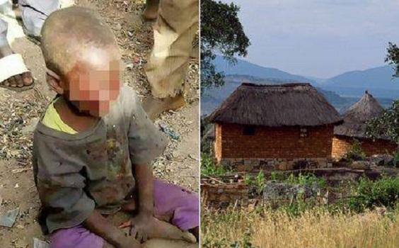 نامادری بیرحم چشمان کودک ۴ ساله را درآورد +عکس ۱۶+