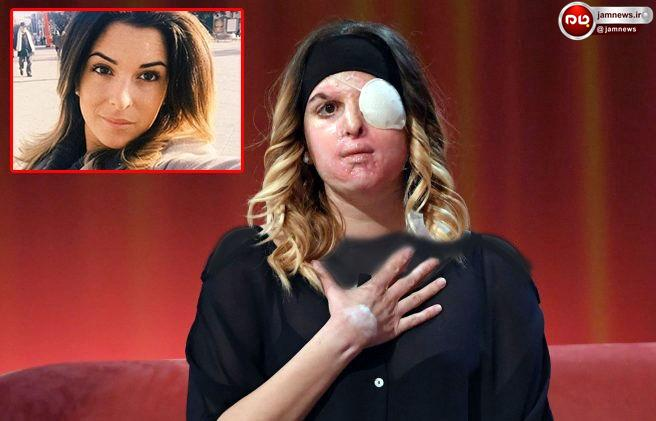 ملکه زیبای 27 ساله را با اسید سوزاندند / قبل و بعد از اسیدپاشی را ببینید + عکس