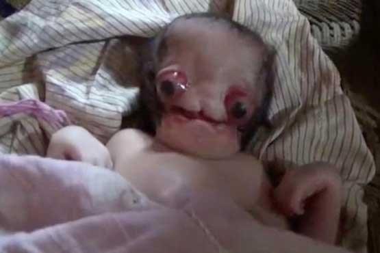 نوزادی شبیه به موجودات فضایی! +عکس