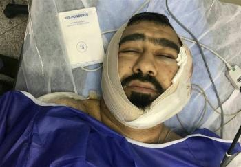 حمله خونین یکی از اوباش منطقه شرق تهران به یک طلبه +عکس