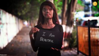 زندگی دختر جوان، ۲۳ سال پس از اسیدپاشی +تصاویر