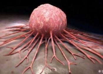 سرطانهای شایع در زنان و مردان ایرانی