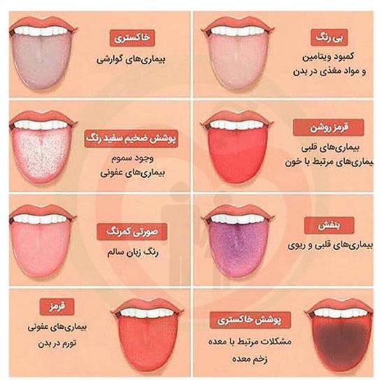 رنگ زبان شما بیماری های شما را نشان می دهد+عکس