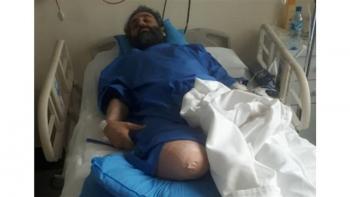 قطع شدن پای محیط بان خوزستانی در حمله شکارچیان+عکس