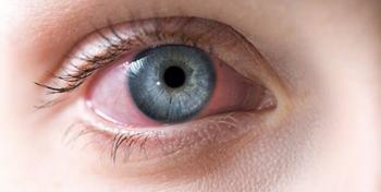 جدیدترین علامت کرونا  ویروس را بشناسید +عکس