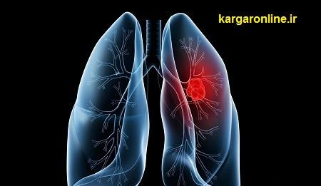 تشخیص آسان سرطان ریه