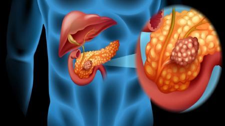 هشدار/علائم سرطان پانکراس که از آنها بیاطلاع هستید