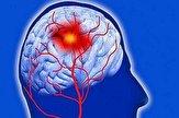 کرونا؛ ویروسی که به رگ های مغزی حمله ور می شود